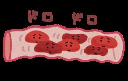 血流が悪い状態