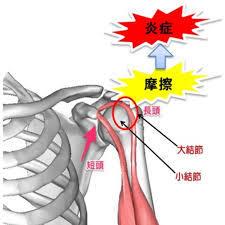 上腕二頭筋長頭腱炎|山梨県甲府市のいのうえ整骨院